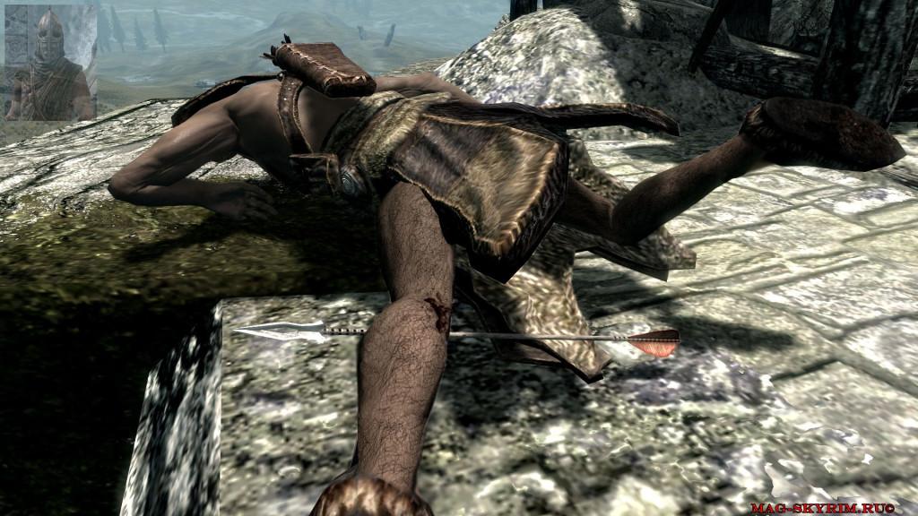 vela-doroga-priklutheni-a-potom-mne-prostrelili-koleno